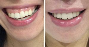 Botox_Gummy_Smile